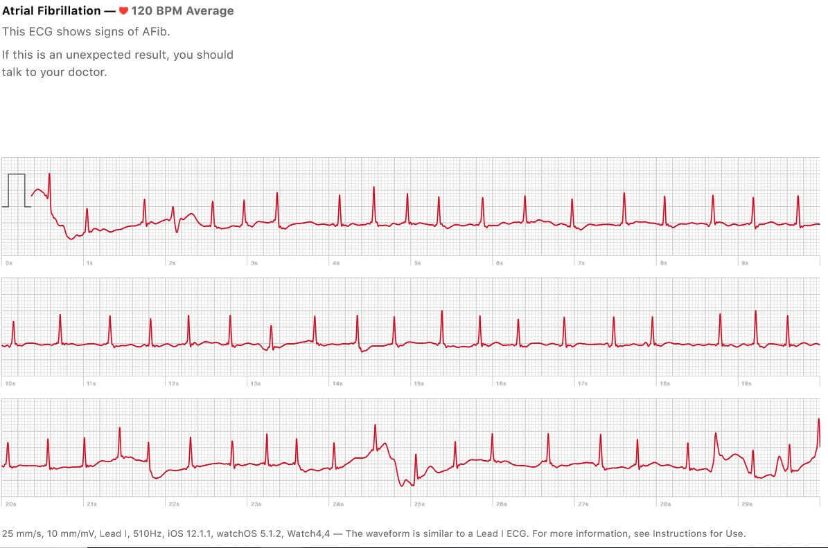 Apple Watch S4 心電圖功能開啟沒多久馬上成功解救了一條生命